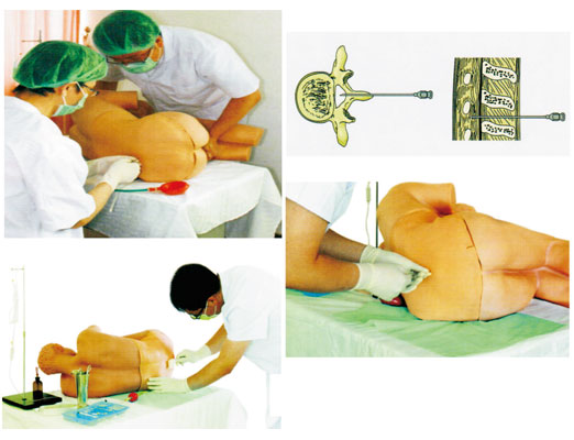 腰椎穿刺仿真标准化病人